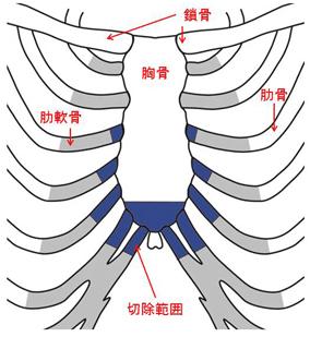 胸肋挙上術変法