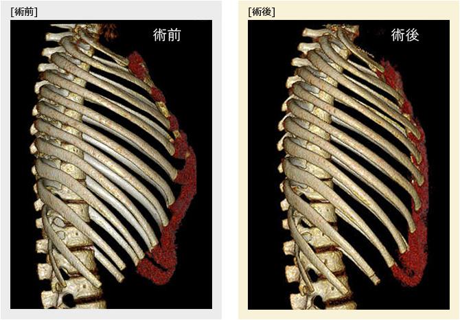 鳩胸の胸郭