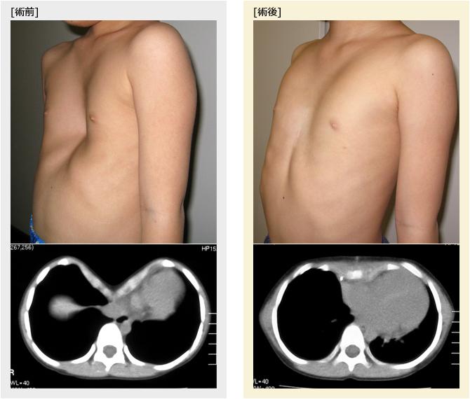 5歳男児胸部CT