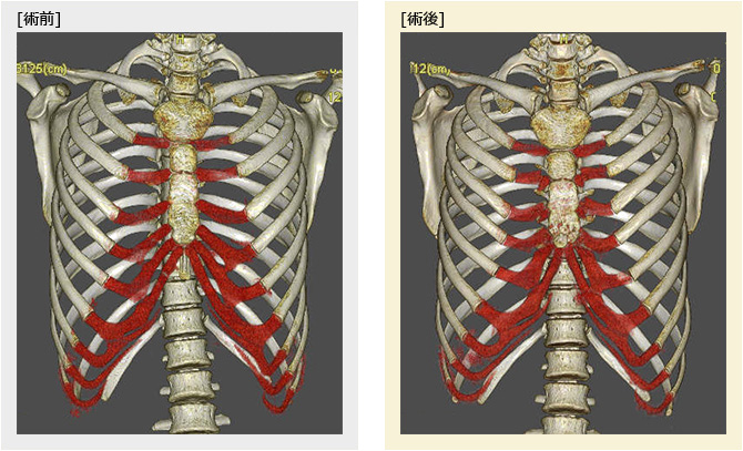 漏斗胸の胸郭