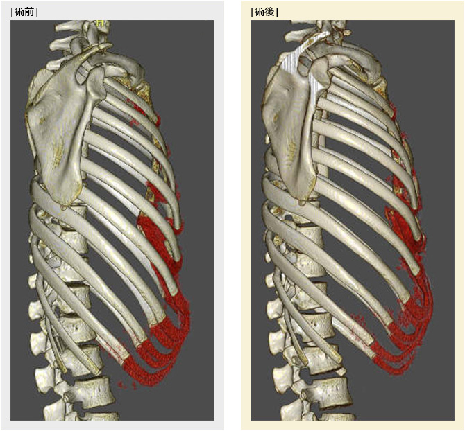 漏斗胸の胸郭側面