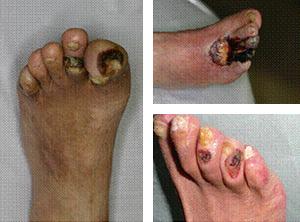 末梢動脈疾患による下肢創傷の写真