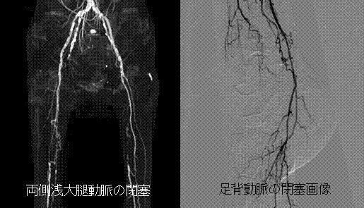 末梢動脈疾患の画像