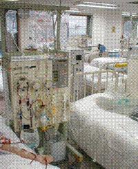 LDL細胞吸着療法の治療風景