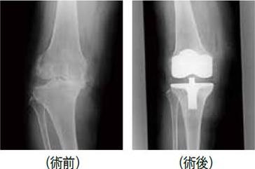 人工膝関節単顆置換術(UKA)