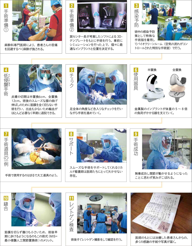 手術の流れ