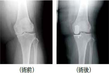 人工膝関節全置換術(TKA)