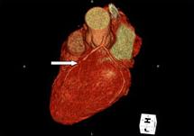 64列MDCTによる冠動脈3DCT画像