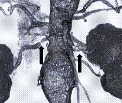 両側腎動脈狭窄症