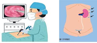 【参考:腎不全 治療選択とその実際】