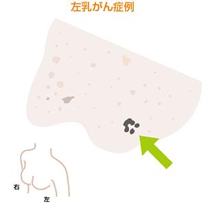 実際の乳がんのDWIBS画像