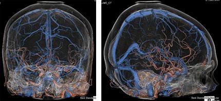 脳全体の動静脈