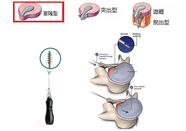 経皮的髄核摘出術