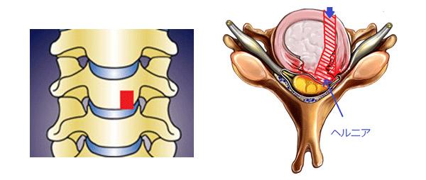 Key hole surgery(鍵穴手術)