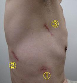 腹腔鏡下手術の創部