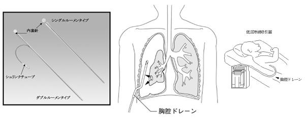 胸腔ドレーン