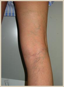網目状静脈瘤・クモの巣状静脈瘤