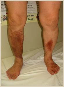 うっ滞性皮膚炎