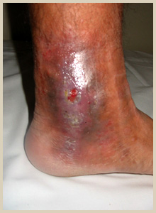 うっ滞性皮膚潰瘍
