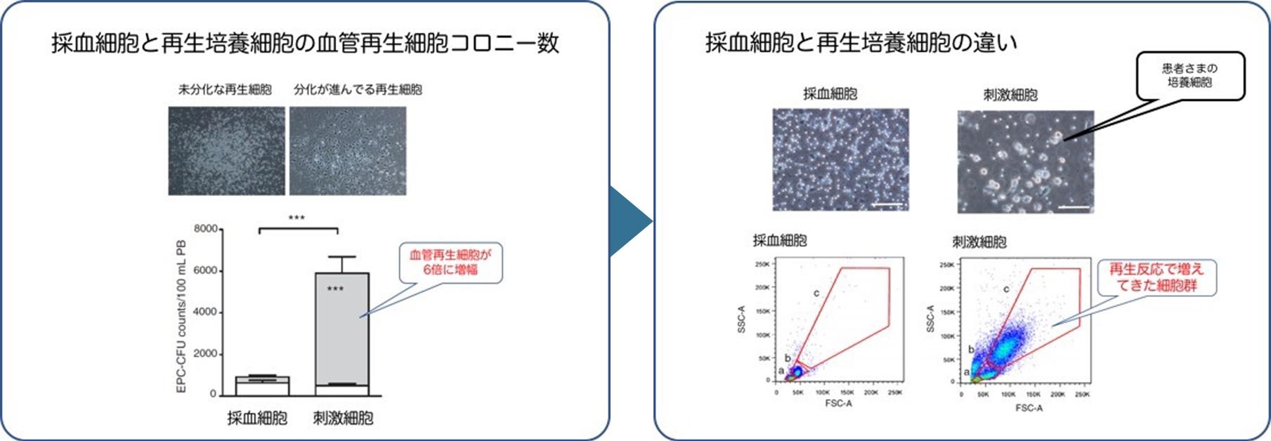 血管再生細胞の数と質