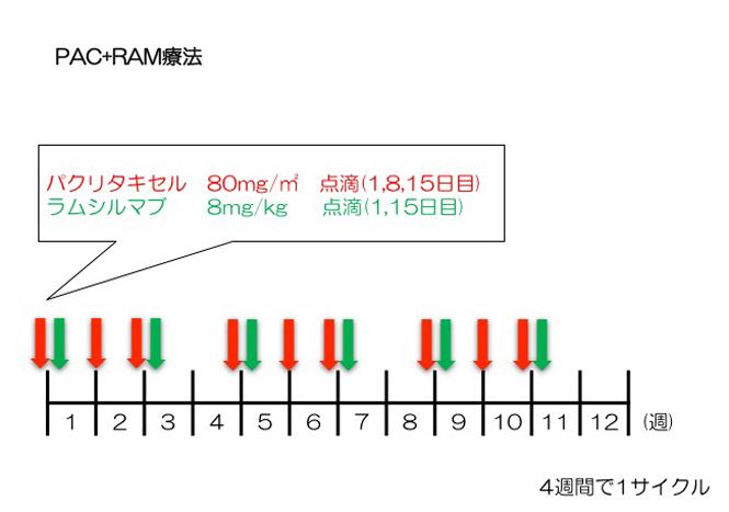 PAC+RAM療法