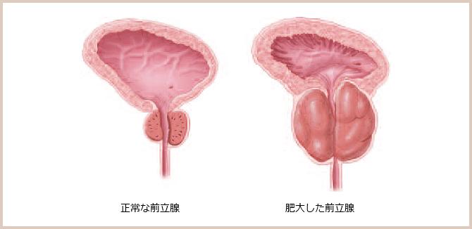 図:肥大した前立腺